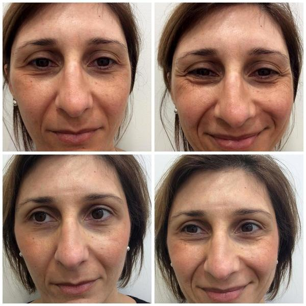 How Much Does 20 Units Of Botox Cost Facial Injections Info Prices Photos Reviews Q A
