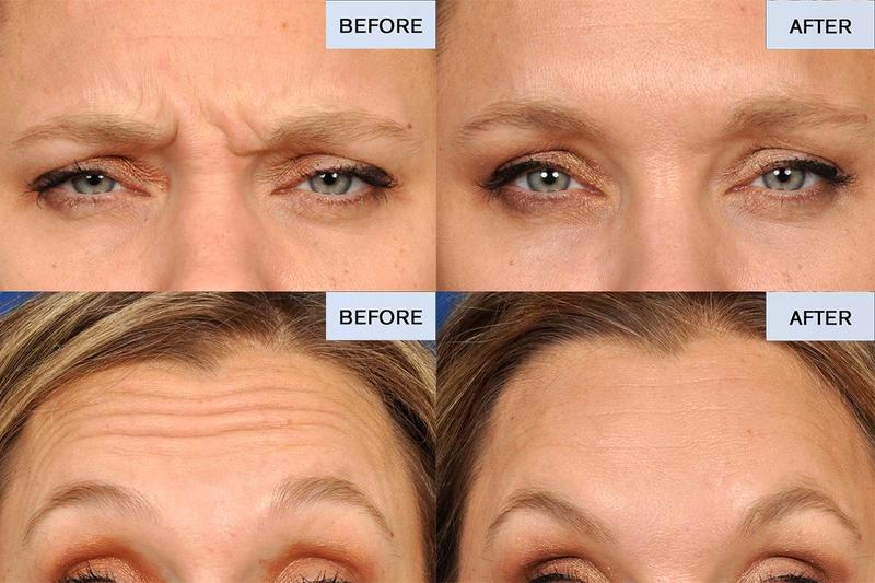 40 Year Old Patient Eceived 30 Units Of Botox To The Forehead And