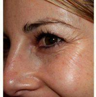 foto de How Much Should Botox Cost Per Unit? » Facial Injections: Info ...