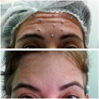 What Is Botox Alternative? » Facial Injections: Info, Prices