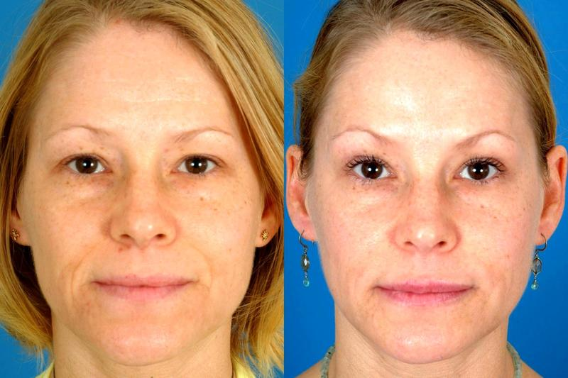 Botox Before And After By By Dr. Benjamin Bassichis, Dallas Plastic Surgeon