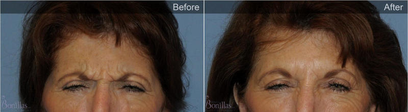 Botox Between Eyebrows By Dr Robert G Bonillas Md Scottsdale Az
