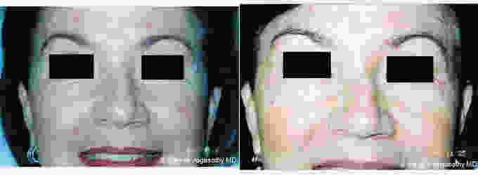 Botox Cosmetic Used To Treat Eye Wrinkles With Doctor Manjula
