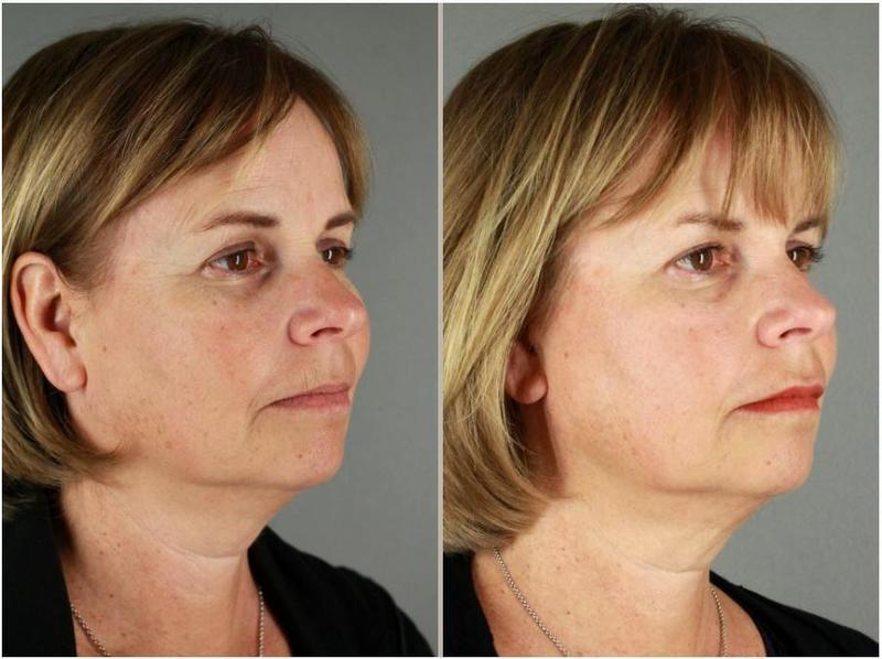 Botox In Between Her Eyebrows Crows Feet By Patti Flint Md Pc Md
