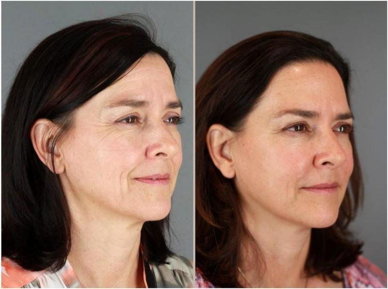 Botox To Forehead And Between Eyebrows By Patti Flint Md Pc Md