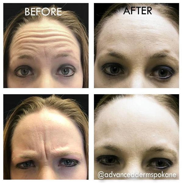 how to lose wrinkles on forehead