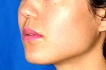 botox face slimming san francisco