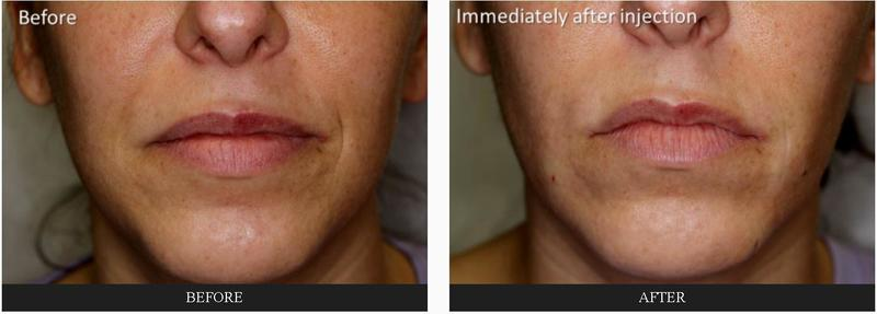 Fillers By Dr Tri Nguyen Dermatologist In Houston Tx 2 Facial