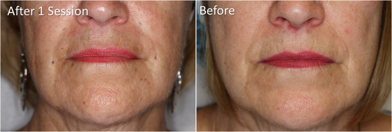 Fillers By Dr Tri Nguyen Dermatologist In Houston Tx 3 Facial