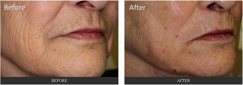 Fillers To Mouth By Dr George G Hughes Iii Md Dermatologist In