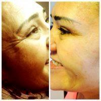 How Long Does It Take Botox To Settle? » Facial Injections ...