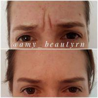 Botox Didn't Work On Frown Lines » Facial Injections: Info ...