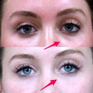 Miami Botox Cost And Before After Photos » Facial Injections: Info