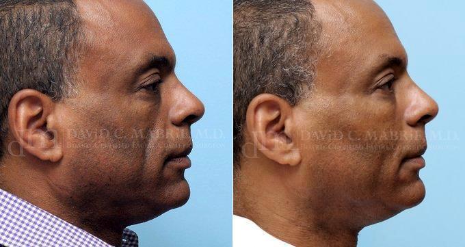 bay area facial