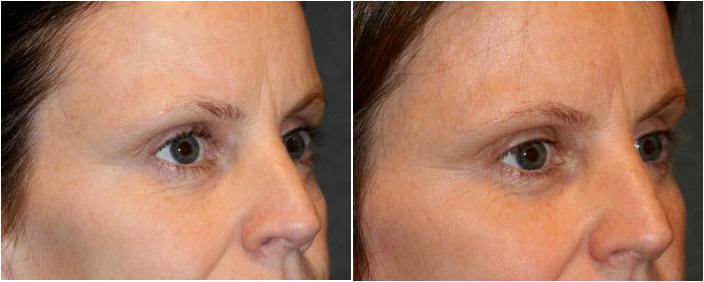 Radiesse Filler Injected to the temples by Dr  Otto J