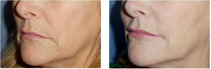 Radiesse, Juvederm Ultra Plus, Belotero And Botox By Dr
