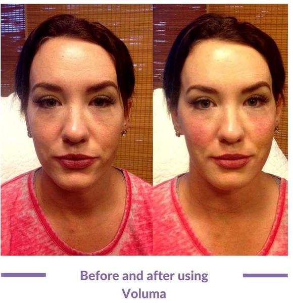 Cost of wrinkle filler injections : Download animated movies