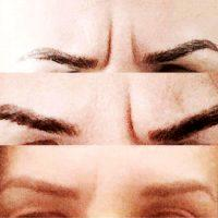 How Long Does Botox Take To Work On Frown Lines? » Facial ...