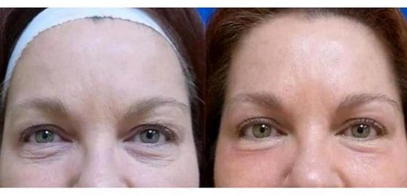 Botox By Dr P Alexander Ataii Md Dermatologist In San Diego