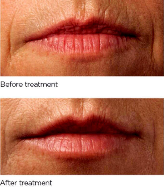 Botox In Smokers Lines Before And After (12) » Facial