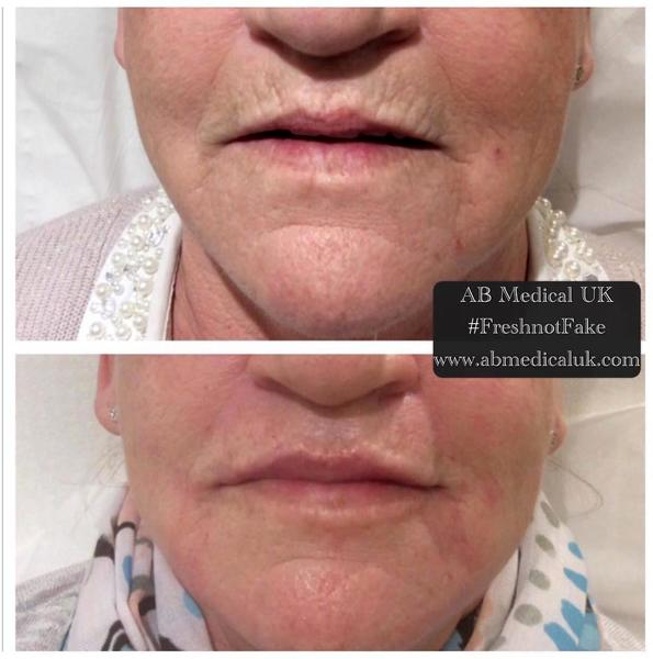 Botox In Smokers Lines Before And After (15) » Facial