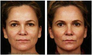Los Angeles Botox Cost And Before After Photos » Facial Injections