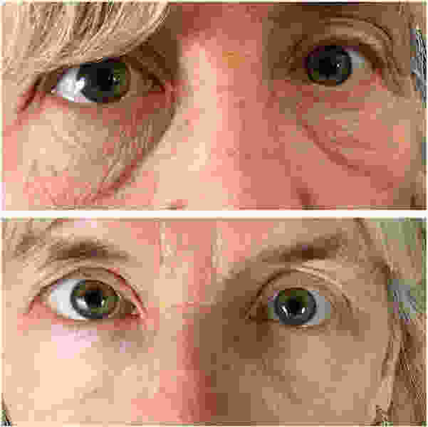 Botox Under Eyes Images 3 187 Facial Injections Info