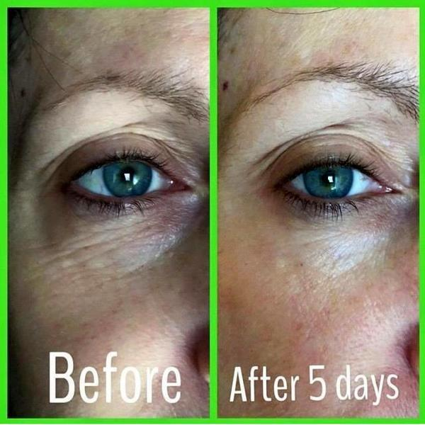 botox under eyes photos 4 187 facial injections info