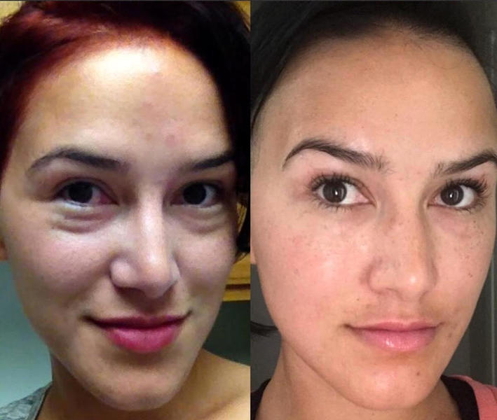 voluma before and after eyes