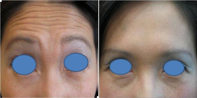 Botox With Dr Bryan K Chen Md San Diego Dermatologist Facial