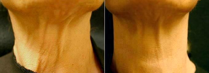 Doctor Kenneth Beer, MD, Palm Beach Dermatologic Surgeon – Botox ...