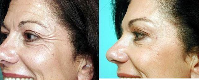 Doctor Mehryar Ray Taban Md Facs Beverly Hills Oculoplastic Surgeon Botox For Crow S Feet Facial Injections Info Prices Photos Reviews Q A