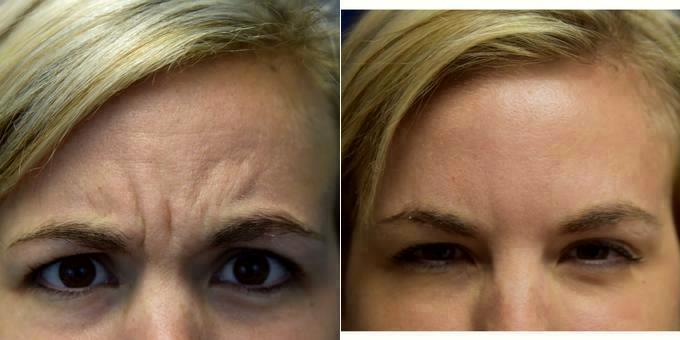 Pensacola facial plastic surgery