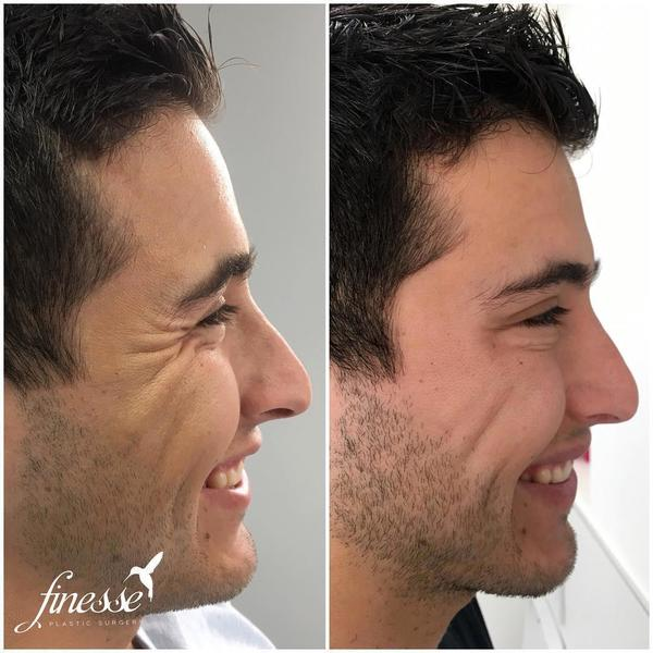 Male Botox Crows Feet Before And After Picture » Facial