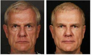 Los Angeles Botox Cost And Before After Photos » Facial