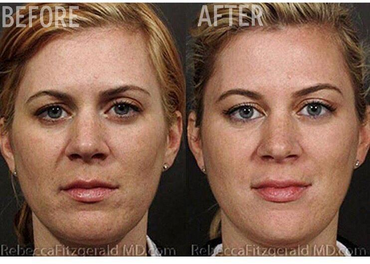 Sculptra Aesthetic By Dr  Rebecca Fitzgerald, Cosmetic