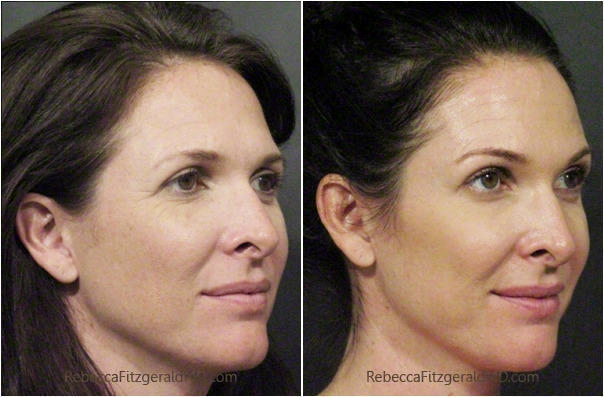 Botox Los Angeles Beverly Hills Dermatology - oukas info