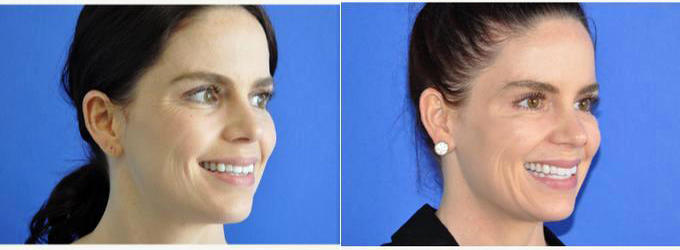 44 Year Old Woman Treated With Botox With Doctor Karan Dhir Md Beverly Hills Facial Plastic Surgeon Facial Injections Info Prices Photos Reviews Q A