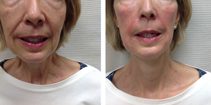 Before And After 1 Juvederm Ultra Plus XC And 2 Juvederm ...