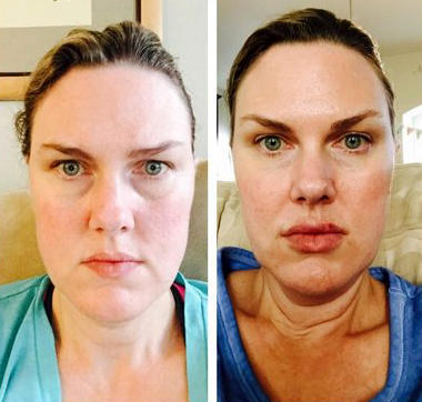 Botox Toxin With Doctor James M Pearson Beverly Hills Plastic Surgeon Facial Injections Info Prices Photos Reviews Q A