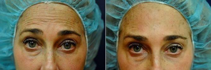 Botox With Dr Jennifer Reichel Md Seattle Dermatologist Facial